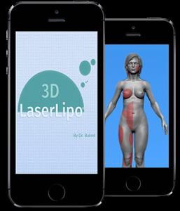 3Dlaserlipo_app